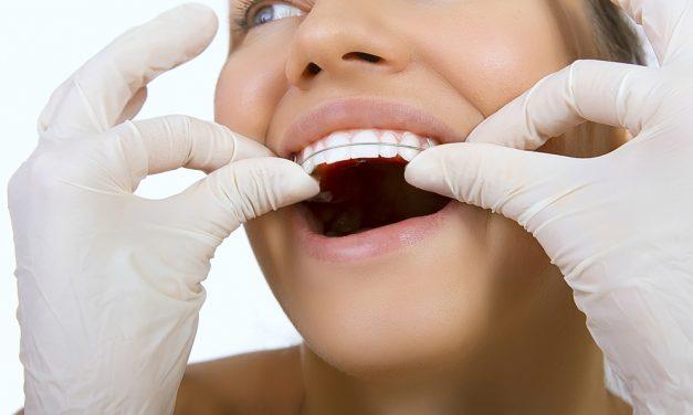 L'orthodontie invasilign, comment ça fonctionne ?