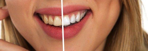 Nos conseils pour retrouver un sourire éclatant !