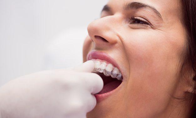 Comment bien nettoyer son appareil dentaire ?